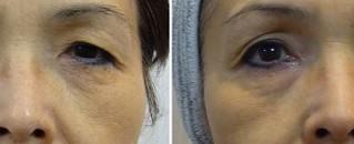 目元のたるみ、眼瞼下垂を改善するレーザー治療